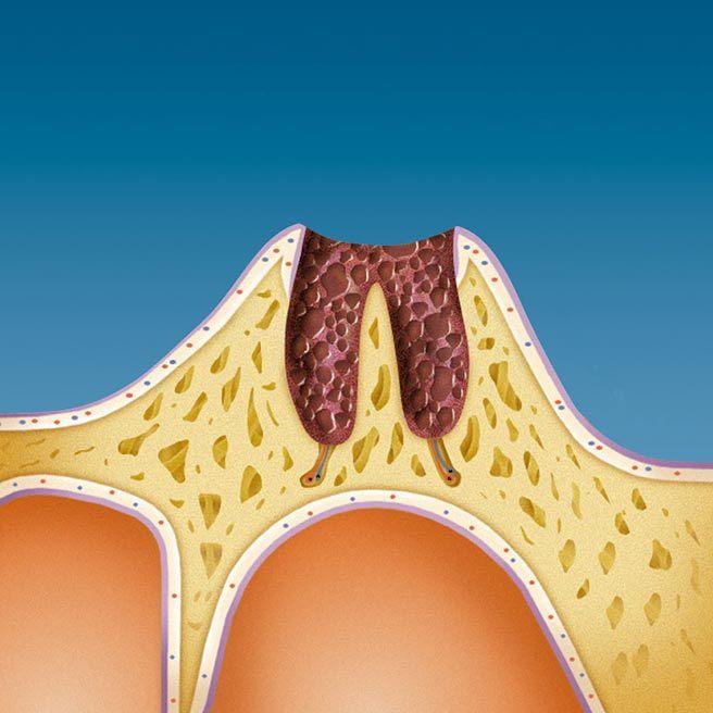Následkom straty zubu je hlboká rana v čeľusti | Protefix