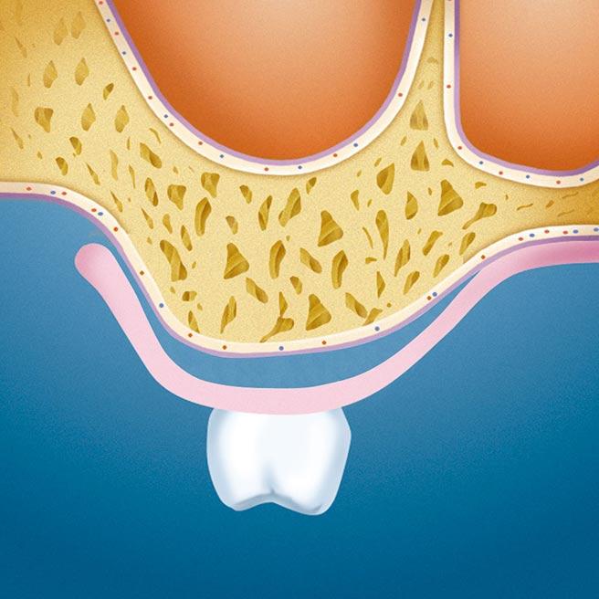 Zubná náhrada počas prechodného obdobia (medzery medzi alveolárnym hrebeňom a dočasnou zubnou náhradou) | Protefix